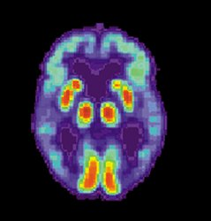 Obraz mózgu chorego na chorobę Alzheimera